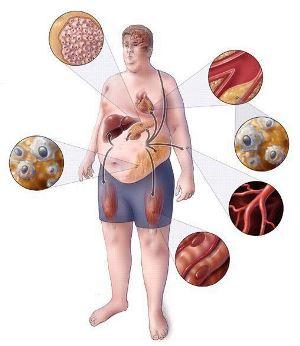метаболический синдром лечение