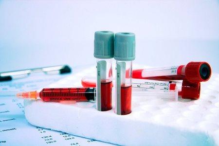 Мочевина крови и заболевания