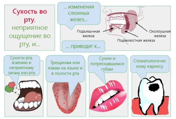 Причины и условия возникновения ксеростомии