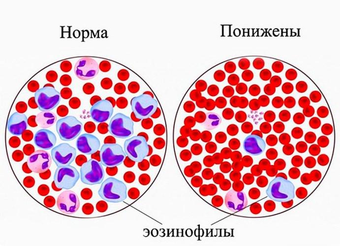 эозинофилы норма