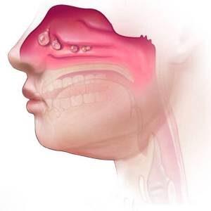 Неаллергический ринит