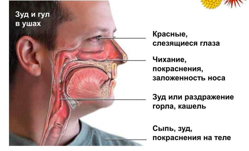 Аллергия. Симптомы аллергии, патогенез и лечение