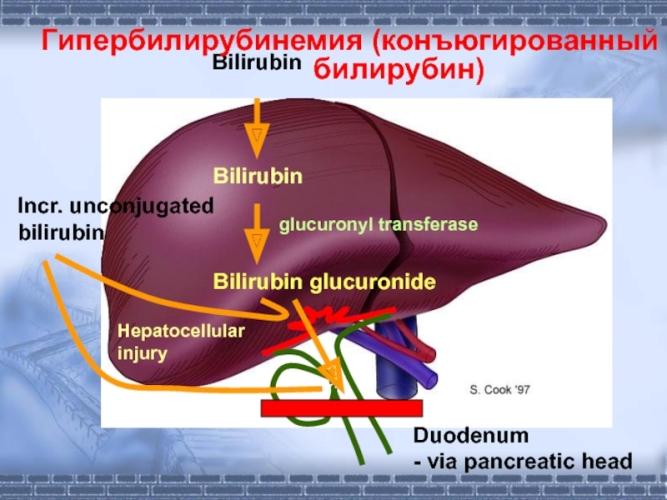 конъюгированная гипербилирубинемия