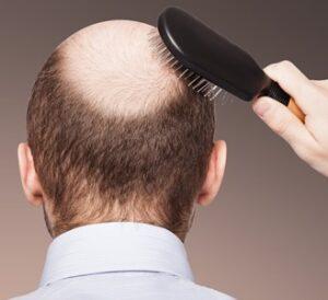 Как не потерять волосы