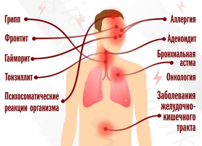 Клиническое значение кашля