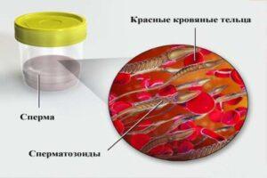 кровь в сперме