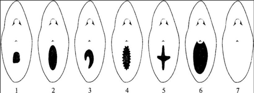 Размер и форма разрыва девственной плевы