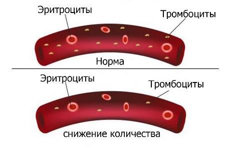 Иммунная медикаментозная тромбоцитопения
