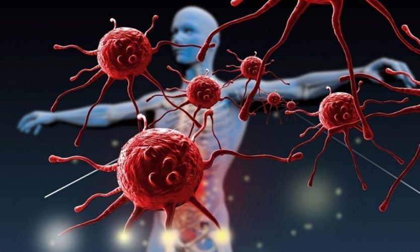 Вторичный иммунодефицит