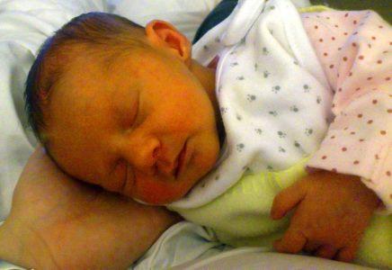 Гипербилирубинемии новорожденных