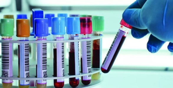 биохимические тесты